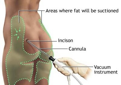 fat lost through liposuction is back within a year thighs abdomen